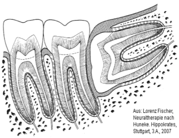 NEURAL_THERAPY_-_WISDOM_TOOTH